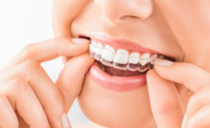 Invisible Braces | Coast Family Dental Currimundi
