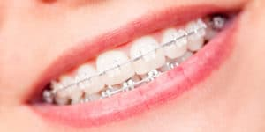 Dental Braces 6 | Coast Family Dental Currimundi